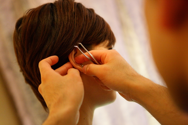 耳鍼(耳針)