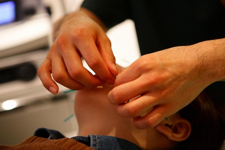 ピンポイント鍼灸